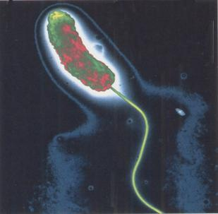 vibrión colérico
