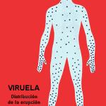 ¿Qué es la viruela?