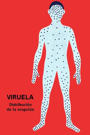 diseminación viruela