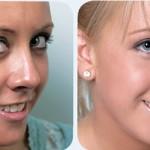 Algunos tips para mejorar la piel grasa