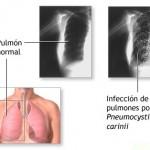 Neumonía, síntomas y cuidados