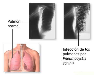 Neumonía síntomas y cuidados