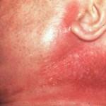 ¿Qué es la septicemia?