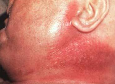 foto septicemia