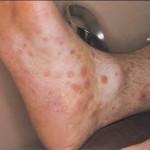 Una enfermedad que se creía erradicada: sífilis