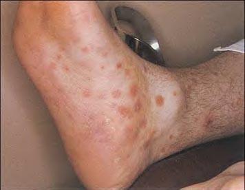 Enfermedad Sífilis