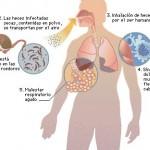 ¿Qué es la enfermedad causada por hantavirus?