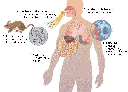 contagio hantavirus
