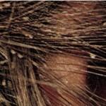 La pediculosis: un problema que parece incontrolable