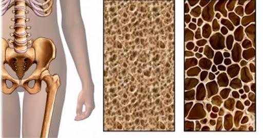 Alteraciones y complicaciones de la osteoporosis