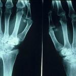 Qué es y a qué afecta la artritis reumatoidea