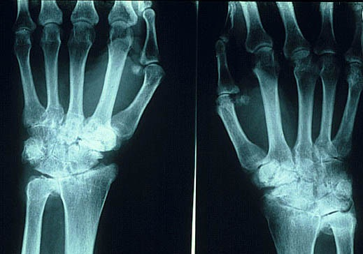 Qué es y a qué afecta la artritis reumatoidea.