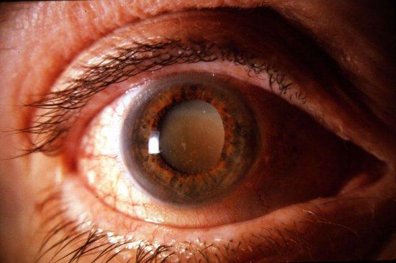 Cataratas oculares: Síntomas y tratamiento