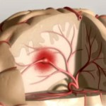 El accidente cerebro vascular y sus síntomas