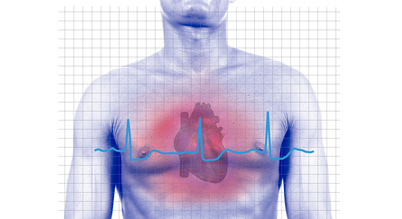 El infarto agudo de miocardio y sus factores de riesgo